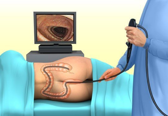 Анальная трещина не заживает после операции