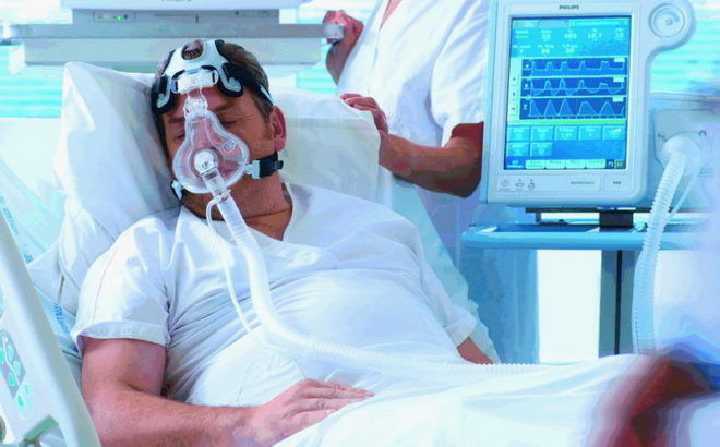 искусственная вентиляция легких