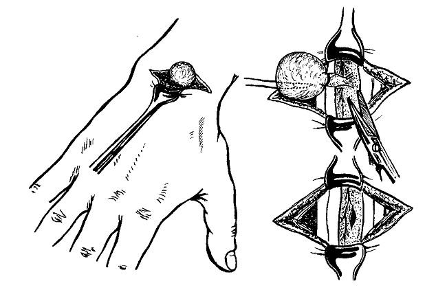 этапы операции по удалению гигромы
