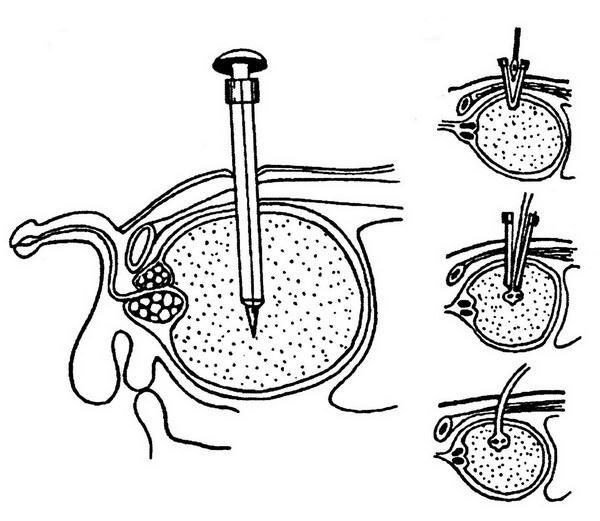 этапы троакарной эпицистостомии