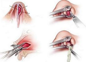Хирургическое лечение фурункула
