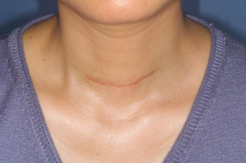 Точное соблюдение рекомендаций доктора позволит сократить период реабилитации и избежать проблем со щитовидной железой в дальнейшем.