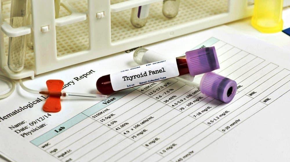 Уровень синтеза кальцитонина в щитовидной железе прямо пропорционален количеству кальция в плазме крови.