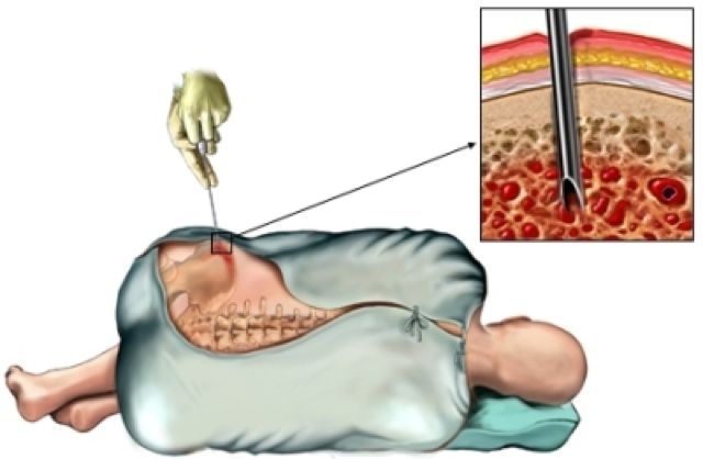 трепанобиопсия костного мозга