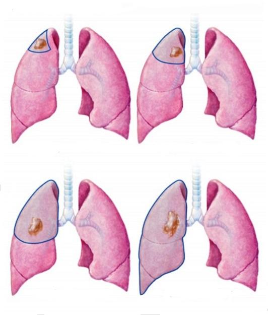 разновидности операций на легких