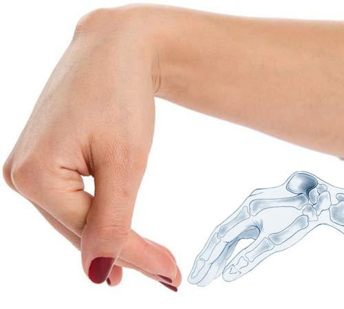 Сколько стоит операция по удалению гигромы лучезапястного сустава чешутся суставы на руках