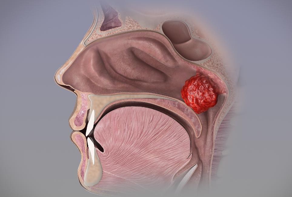увеличение носоглоточной миндалины