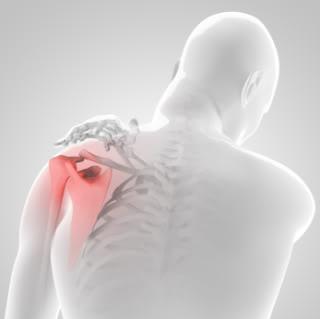 Пунктирование плечевого сустава позволяет извлечь из суставной сумки лишнюю синовиальную или патологическую жидкость.