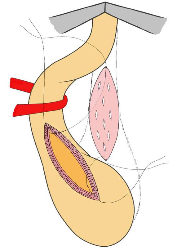пластика уретры буккальным лоскутом