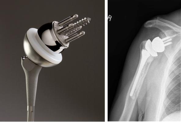 Реверсивный протез плечевого сустава цена боли и опухоль в суставах